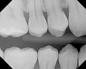 Glass can help fillings repair tooth decay